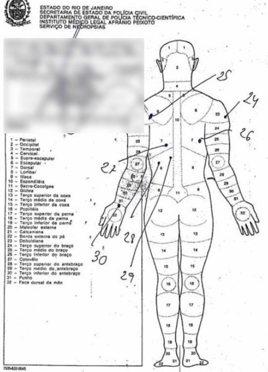 Laudo do IML mostra perfurações causadas por tiros no corpo do pastor Anderson, marido de Flordelis — Foto: Reprodução